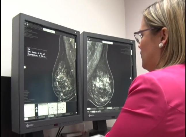 Métodos de detección del cáncer de mama