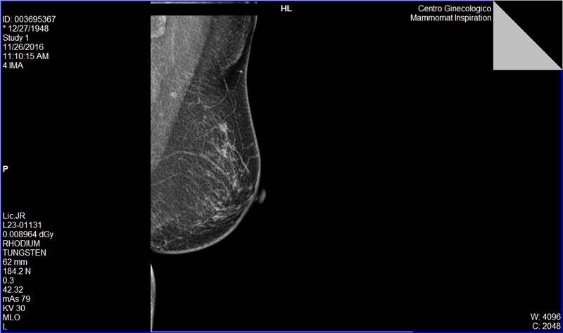 Caso clínico de Mamografía en paciente de 67 años.