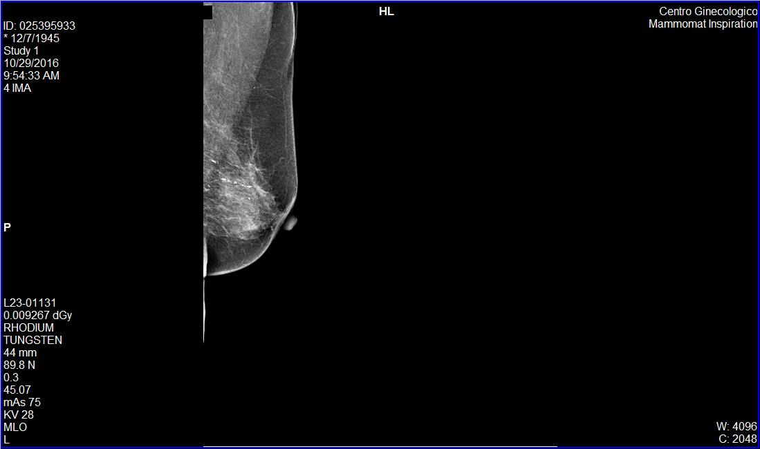 Caso clínico de Mamografía en paciente de 71 años