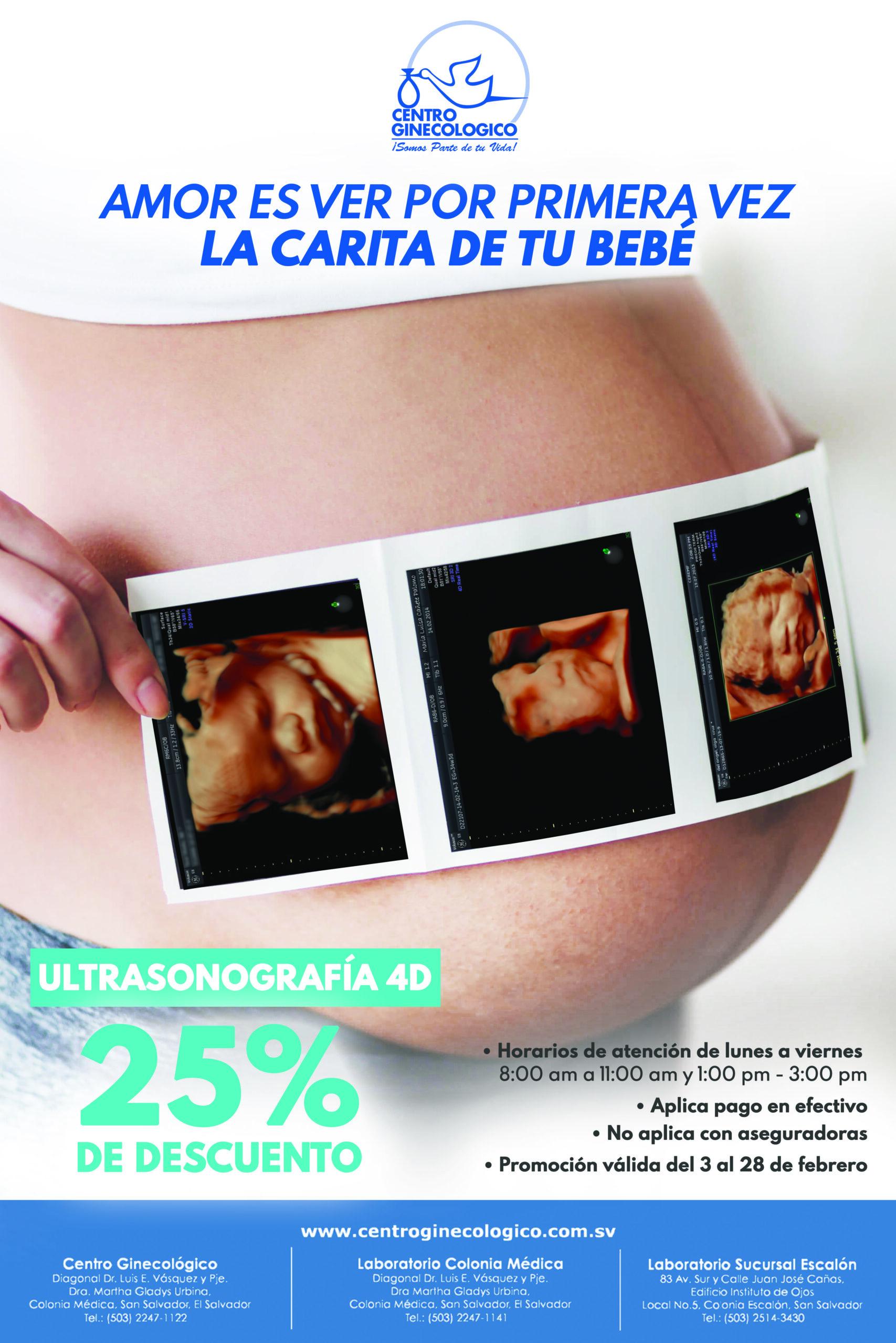 ULTRASONOGRAFIA 4D CON EL 25% DE DESCUENTO
