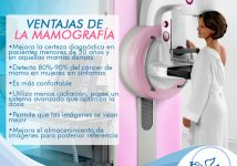 Ventajas de la mamografía