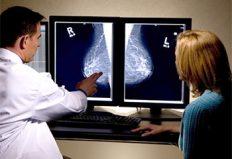 Mamografía Digital Pura: Ventajas para los pacientes